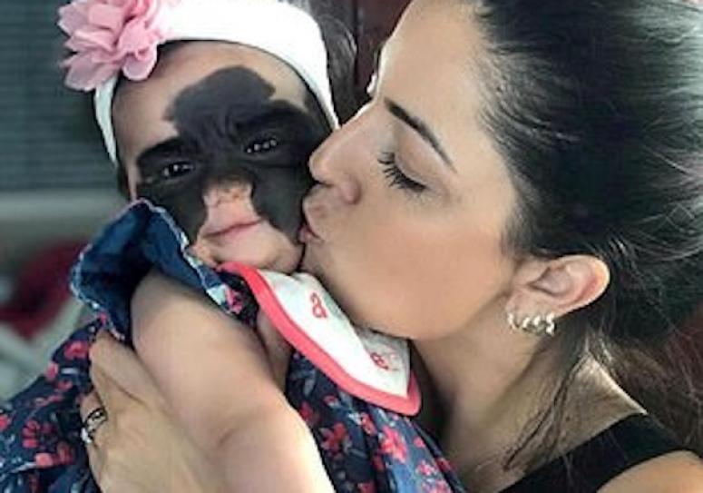 Краснодарские врачи прооперируют шестимесячную американскую девочку с огромным родимым пятном на лице