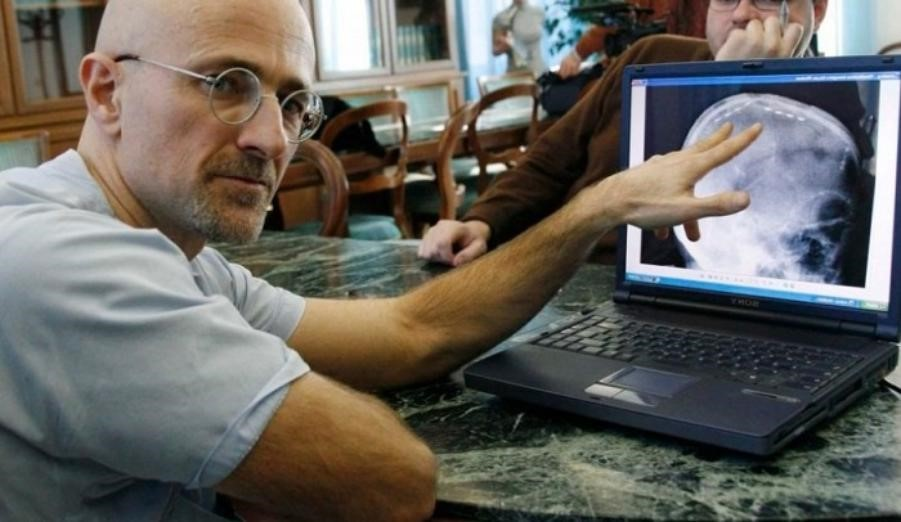 Китайские врачи пересадили человеческую голову