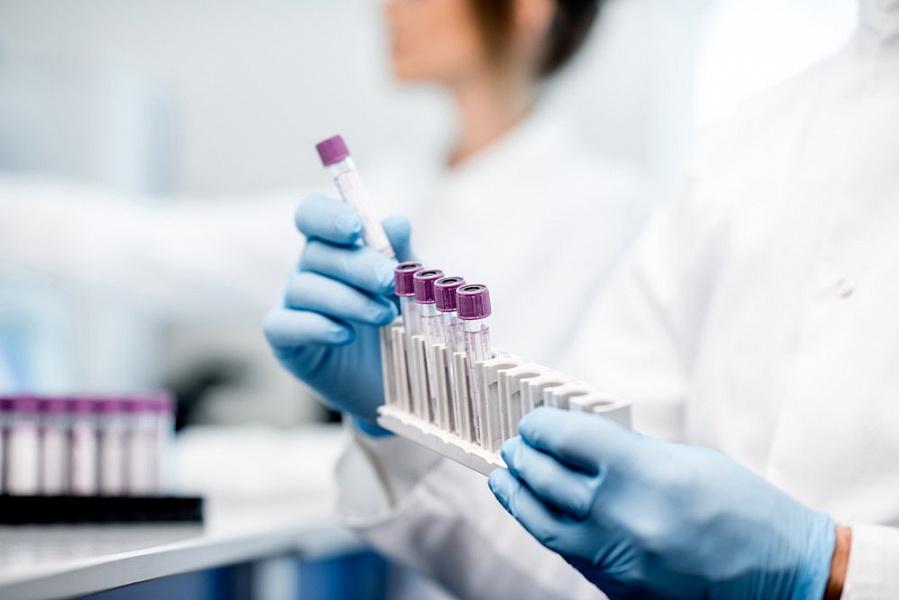 На Кубани за последние сутки коронавирус подтвердился у 57 человек
