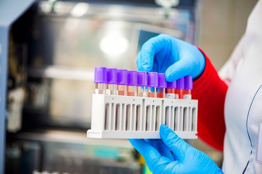 За последние сутки на Кубани выписаны 90 пациентов после коронавируса